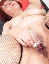 Fat woman Manka fucks her shaved puss using some medical tool