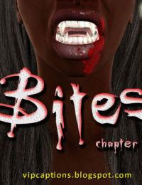 Bites - part 3